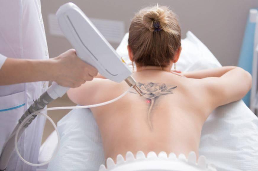 usuwanie tatuaży warszawa-laserowe usuwanie tatuaży warszawa-www.studionefretete.pl
