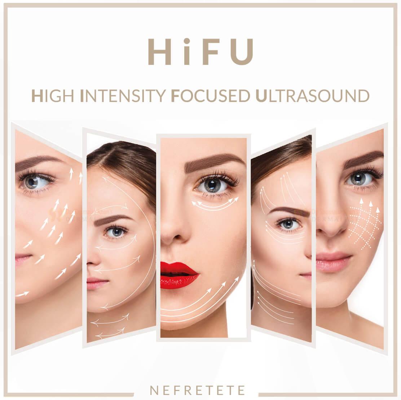 hifu lifting warszawa, zabieg hifu, hifu warszawa, lifting twarzy warszawa, redukcja zmarszczek, medycyna estetyczna www.studionefretete.pl